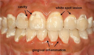 Why did I lose the white color of my teeth? - Quora