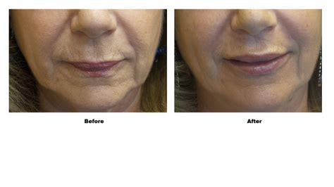 Lip Augmentation Before and After Daytona Beach, Case
