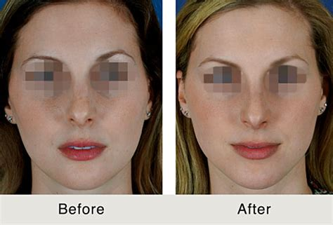 Chin Implants are the Next Big Things in Cosmetic Surgery