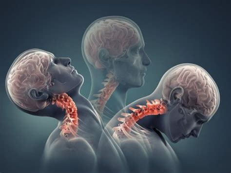 How to Prevent Cervical Lordosis? Causes, Symptoms
